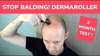 STOP BALDING! - Dermaroller 3 Month Test and Tutorial