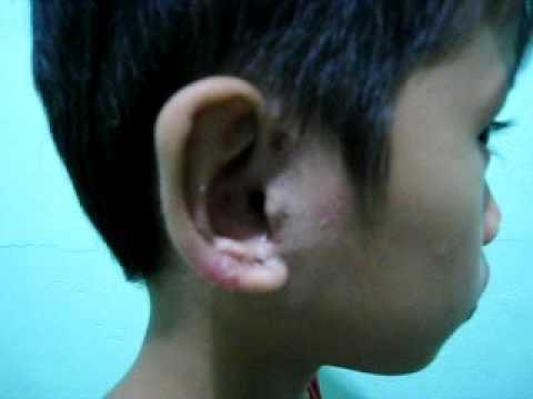 Kung paano mapupuksa ang freckles at konopushek forever