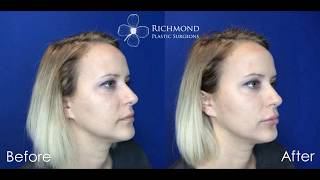 Richmond Plastic Surgeons