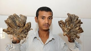 "Surgeries Give ""Tree Man"" His Life Back"