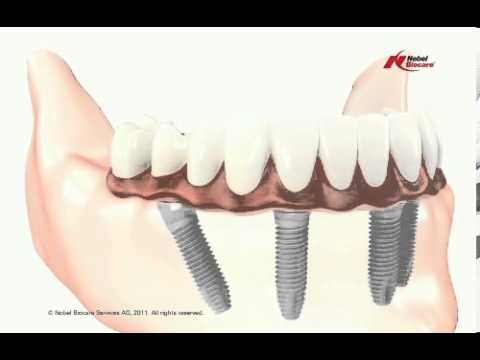 Educational-Video-about-Dental-Implants-Restoration