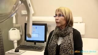 OPINIÓ DELS NOSTRES CLIENTS Implantòlogia - Fina Cardús - Alba Clínica Dental