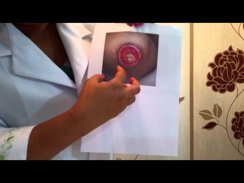 Streptodermiya o neurodermatitis