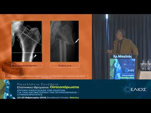 Μπαλτάς Χρ. - Ο ρόλος της Οστικής Πυκνομετρίας στη διάγνωση και παρακολούθηση της οστεοπόρωσης