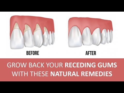 Video 5 Effective Home Remedies for Gum Disease | Natural Cures