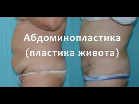 Абдоминопластика (пластика живота) 18+ ВИДЕО  ОПЕРАЦИИ