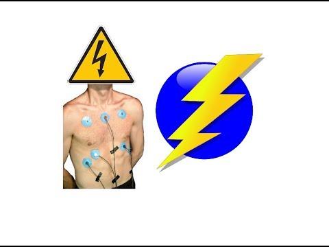 Cyrob : Electrodes sur la peau et risques vitaux...