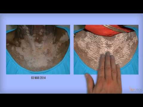 Le psoriasis des plaques unguéales de la photo