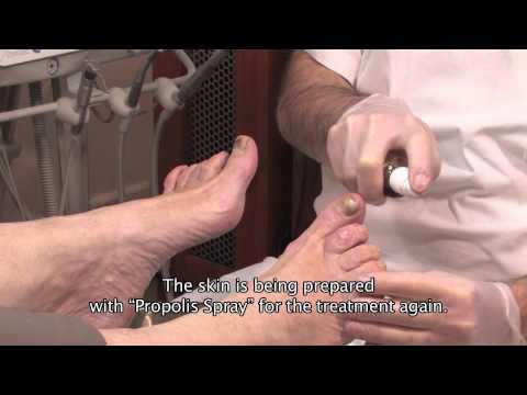 Salben Schmerzen in den Gelenken aus Thailand