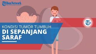 Neurofibromatosis Tipe 1, Kondisi Genetik yang Menyebabkan Tumor Tumbuh di Sepanjang Saraf