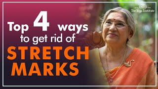 How to get rid of stretch marks | Dr. Hansaji Yogendra