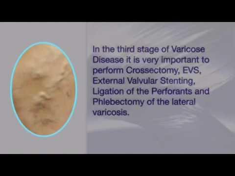 La macchina di esercizio a varicoso