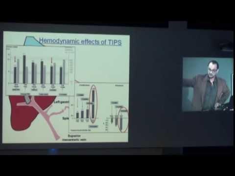 Pressione arteriosa con sindrome metabolica