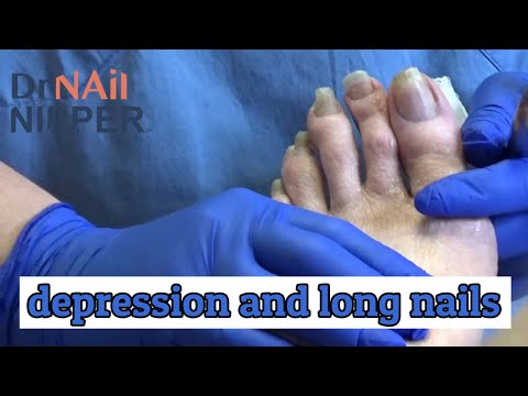 Az index lábujjának gyulladása