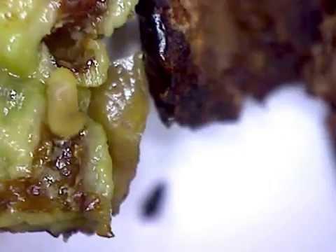 Helminths in un organismo