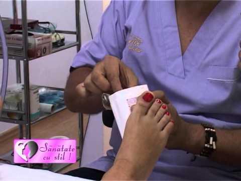 Sânge în urină după radioterapie prostata