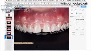 Керамические виниры. Цифровой дизайн улыбки. (DSD- digital smile design)