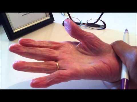 Abszess der Gelenke an den Fingern