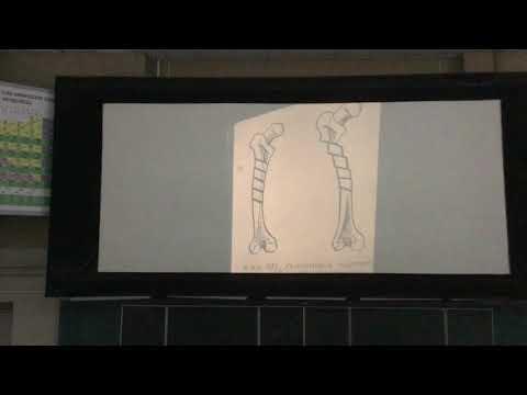 Лекция по ТА и ОПХ от Андрейцева А.Н. по теме «Операции на костях и суставах». Часть 1