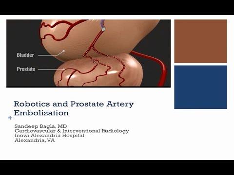 Grüner Laser Prostata cues