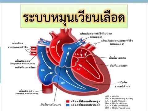 ผ่าตัดหลอดเลือดหัวใจตีบ Stenting