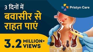 How To Get Relief From Piles In 3 Days | 3 दिनों में बवासीर से राहत पाएं | Best Piles Treatment
