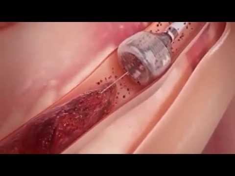 Apa efek salep untuk pembesaran penis
