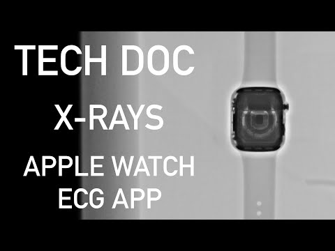 Tech Doc Reviews Apple Watch ECG App: Can Apple a Day Really Keep the Doctor Away?