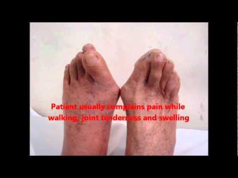 กระดูกปวดภายใต้เท้าของฉัน