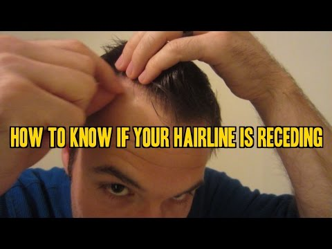 Video How to Know If Your Hairline is Receding