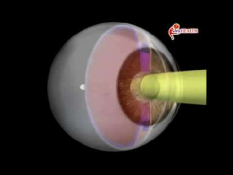 Cum să oprești viziunea senilă