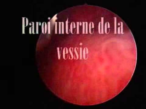 Új kezelések parazitákkal