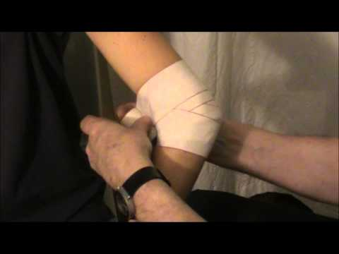 Radikuläre Syndrom, Osteochondrose der Halswirbelsäule