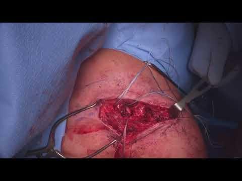 Durere în degetul arătător în articulație