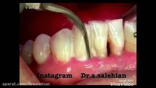 آیا جرمگیری باعث از بین رفتن مینای دندان می شود