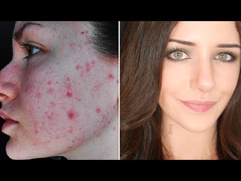 How To Cover Acne & Scars (IF You Want To)   Easy Makeup Transformation Routine
