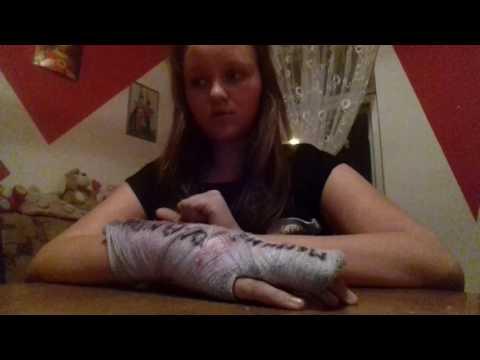 Jak usunąć kości na nogi kciuka
