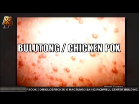 Sa aking mga paa red spots alisan ng balat ngunit ito ay hindi isang halamang-singaw