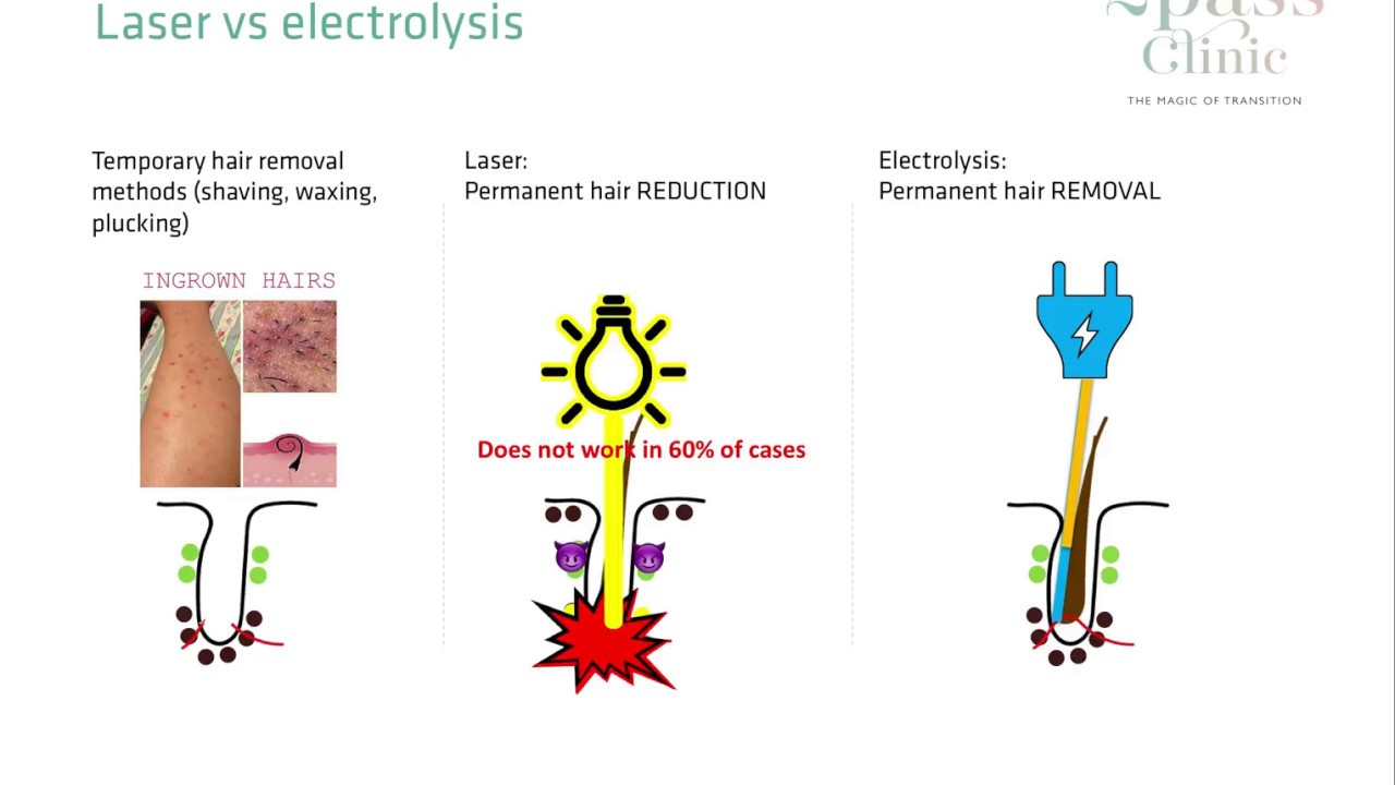 Electrolysis - Laser hair removal vs Electrolysis