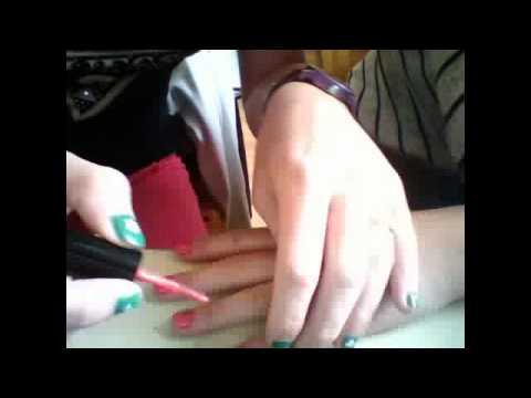 Le microorganisme végétal des ongles les rappels sur les préparations