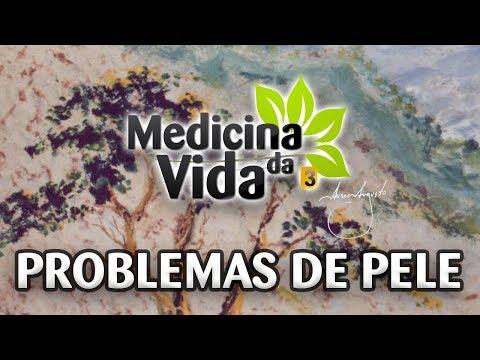 Ghid de boli articulare