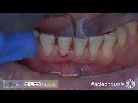 Удаление зубных камней ультразвуком (Acteon 001 4K B) - Апокин А.Д.