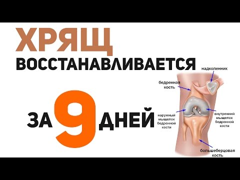 A térd artrózisa 2 fok, mint a kezelés