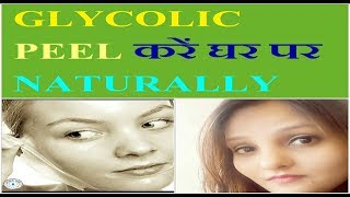 How To Do Natural Glycolic Peeling At Home/get Shiny Face Like Mirror
