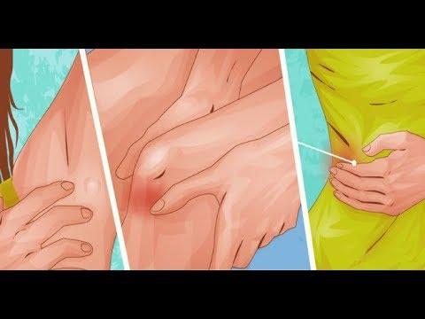 La pâte tejmourova et le psoriasis
