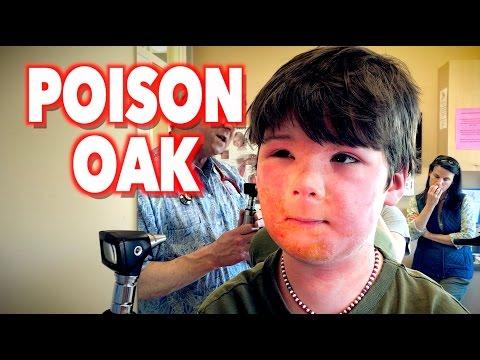 Video Harsh POISON OAK Reaction | Dr. Paul