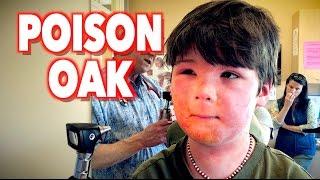 Harsh POISON OAK Reaction | Dr. Paul