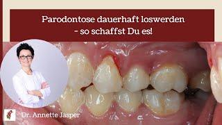 Parodontose dauerhaft loswerden - so schaffst Du es!