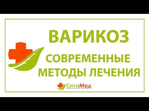 ЛЕЧЕНИЕ ВАРИКОЗА Йошкар-Ола. Флеболог Йошкар-Ола.