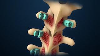 Scoliosis | Scoliosis Surgery | Nucleus Health